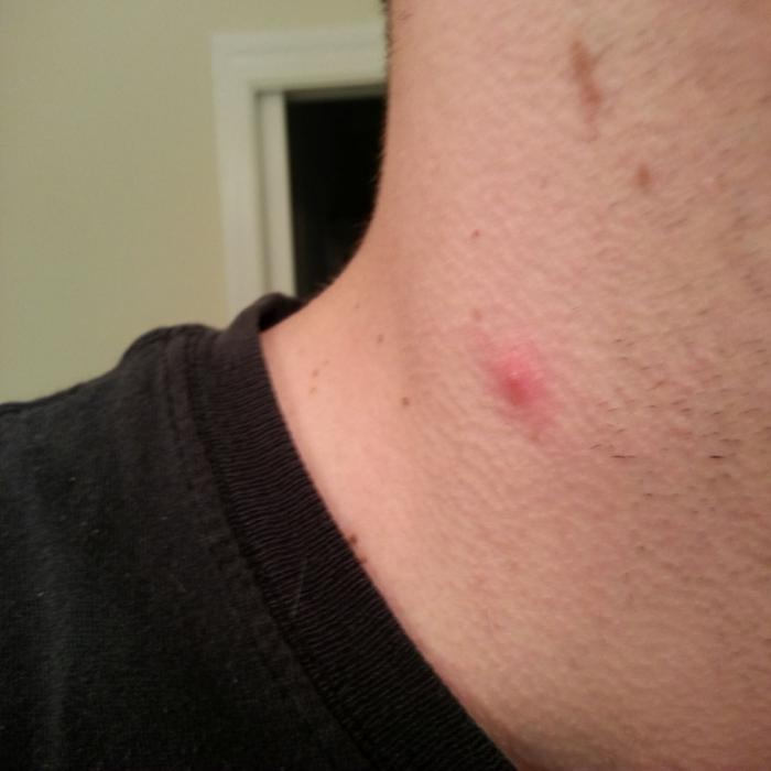 miért jelennek meg vörös foltok a nyakon és viszketnek
