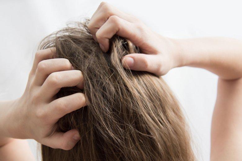 Amikor ritkul a haj | TermészetGyógyász Magazin