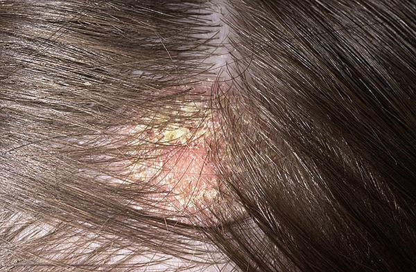 vörös folt a fejbőrön viszketés fotó