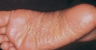 pikkelysömör barbera kezels