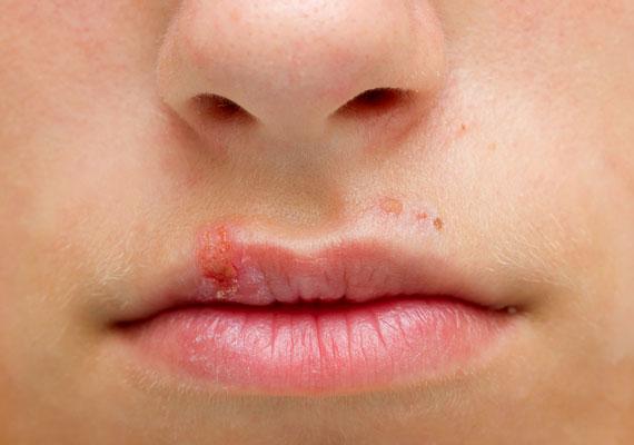 vörös foltok a száj körül pikkelyesek)
