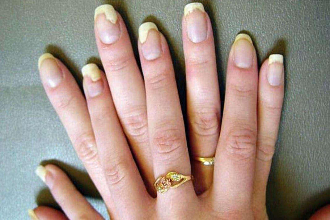 kenőcs miaolin jiefushuang a pikkelysömör dermatitis felülvizsgálatához)