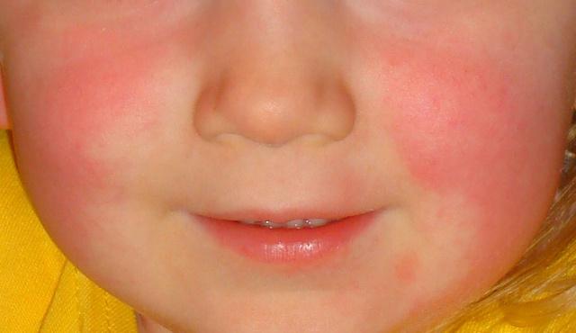 egy nagy vörös folt az arc egyik oldalán