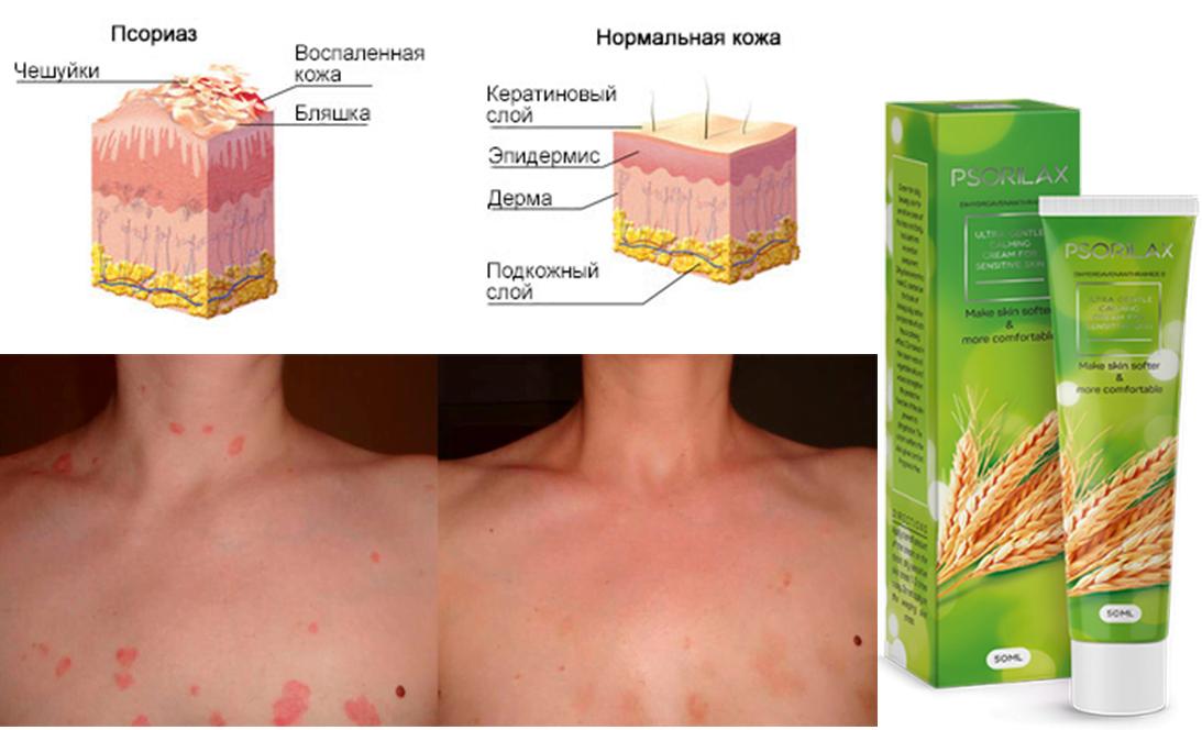 pikkelysömör kezelése krioterápia)