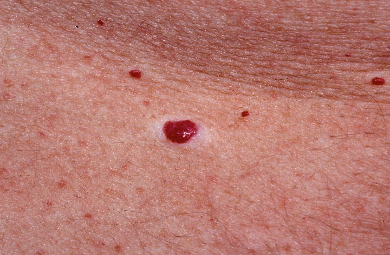 Hogyan lehet megszabadulni a piros kiütések az arcon