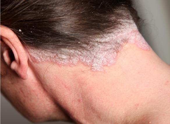 pikkelysömör fej kezelés fotó