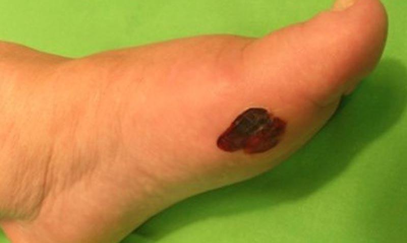 egy cukorbetegnek piros foltok vannak a lábán vörös foltok az arcon, a jobb oldalon fáj