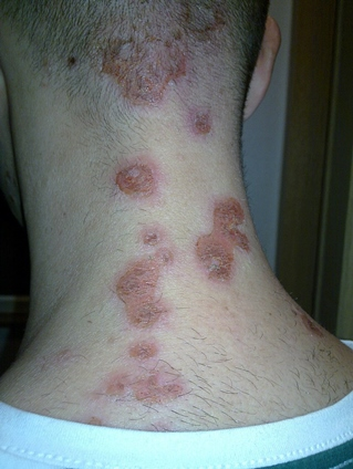 hogyan lehet a viszketõ testen piros foltokat bekenni)