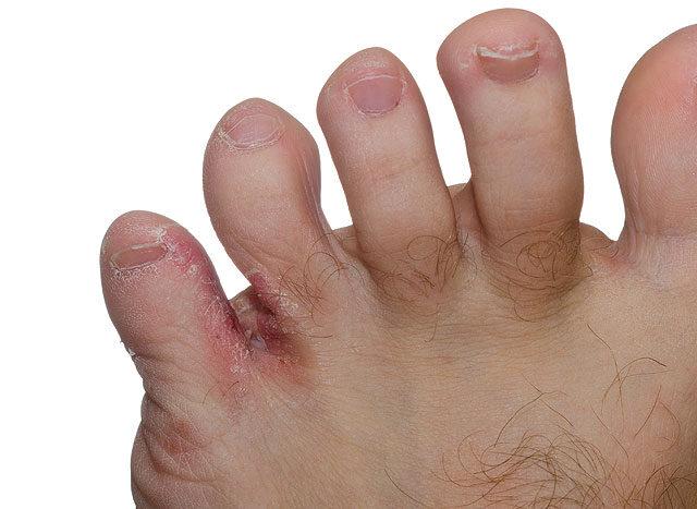 viszket a lábak és a vörös foltok között