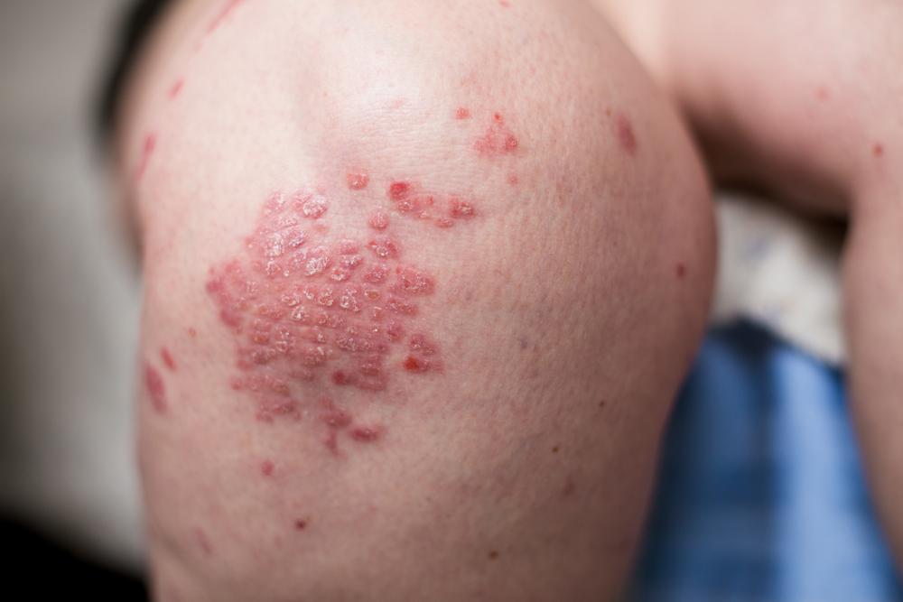 pikkelysömör tünetei és egy könnycsepp alakjának kezelése