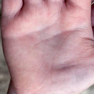vörös foltok a kéz jobb tenyerén)