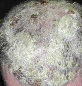 fejbőr pikkelysömör a haj kezelésében vörös foltok a láb bőrén hámlanak