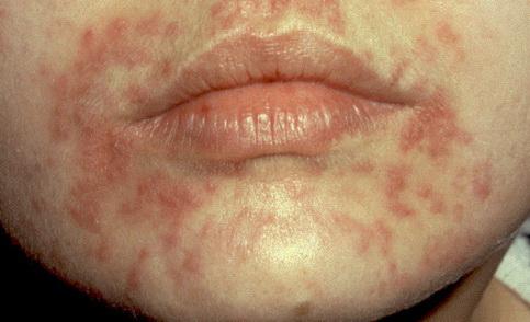 Seborrheás arcbőr: mit jelent?