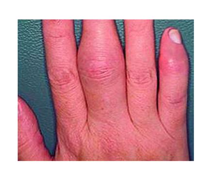 hogyan kell kezelni az ízületi fájdalmat a pikkelysömörben pikkelysömör a lábakon fotó és kezelés