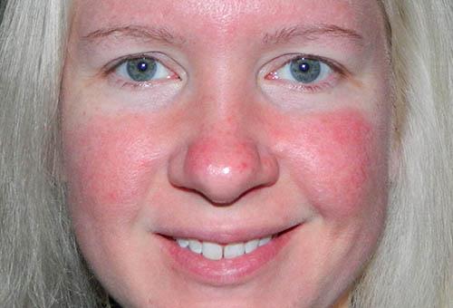 hogyan lehet eltávolítani az orr piros foltját)