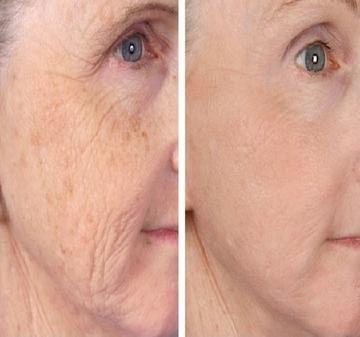 hogyan lehet megszabadulni a vörös foltoktól az arc kopása után