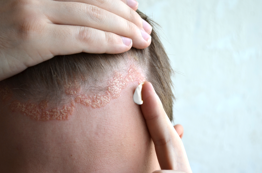 hogyan népi gyógymódok gyógyítják a pikkelysömör fején otthon