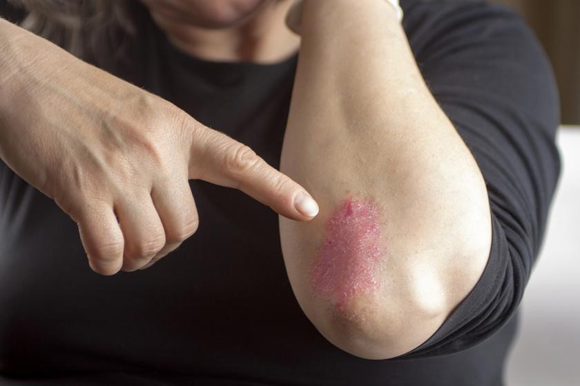 vörös pikkelyes foltok a testen viszket fénykép hogyan kell kezelni apró vörös foltok egy felnőtt viszketés testén