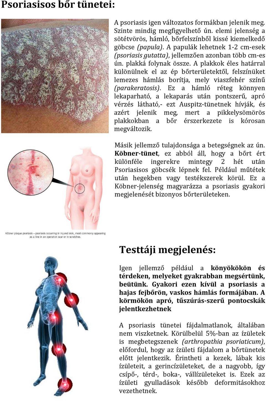 Achatina csigák pikkelysömör kezelése pikkelysömör az ízületeken kezelés népi gyógymódokkal