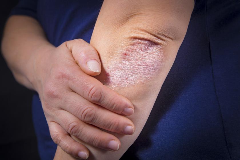 pikkelysömör kezelése a tavon édes sötétvörös folt a bőrön