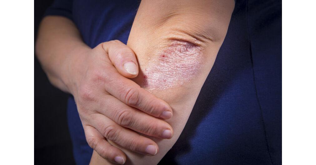 pikkelysömör kezelésére Imunofan