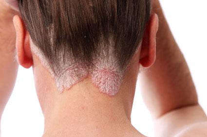 pikkelysömör metotrexát kezelési rend