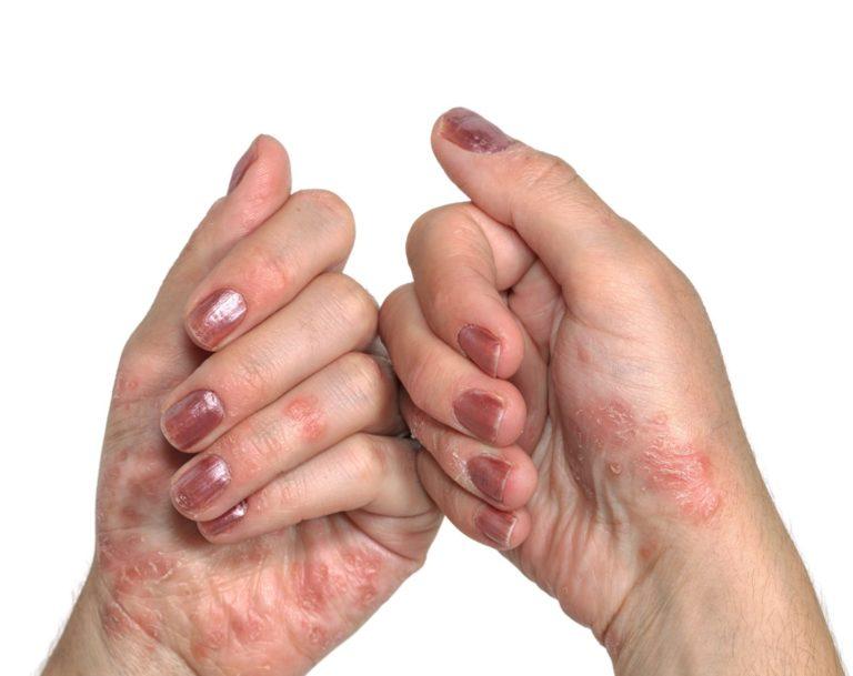 polysorb pikkelysömör kezelésében