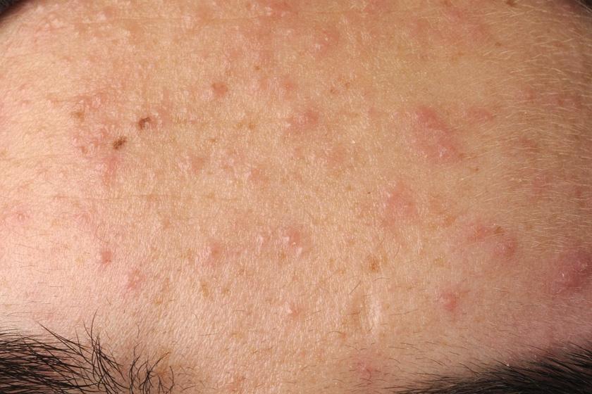ricinusolaj kezelése pikkelysömörhöz