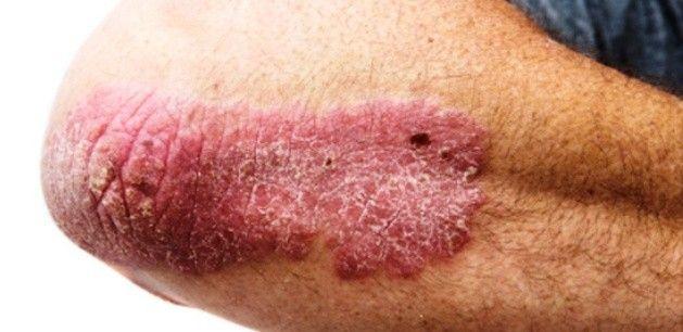 Thai pikkelysömör kezelése