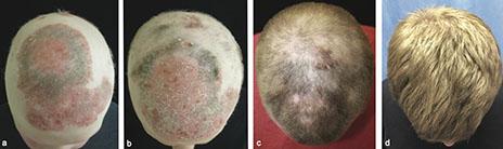 tofacitinib pikkelysömör kezelése