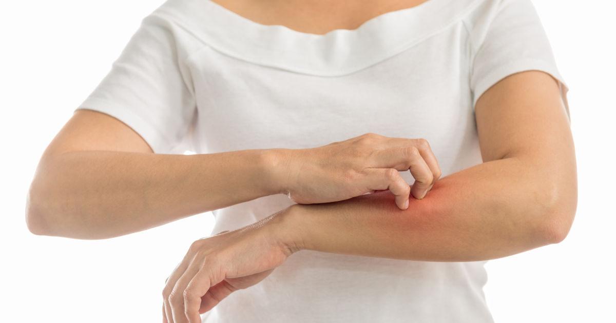 vörös foltok a bőrön hepatitis után