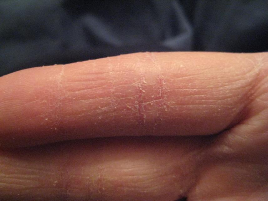 pikkelysömör kezelése népi módszer vörös foltok a körte levelek kezelésén