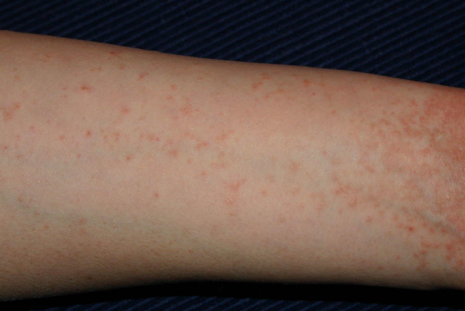 vörös foltok a testen népi gyógymódokkal történő kezelés pikkelysömör kezelésének előadása