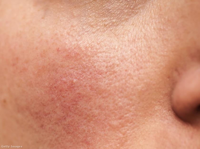 demodikózis vörös foltok az arcon