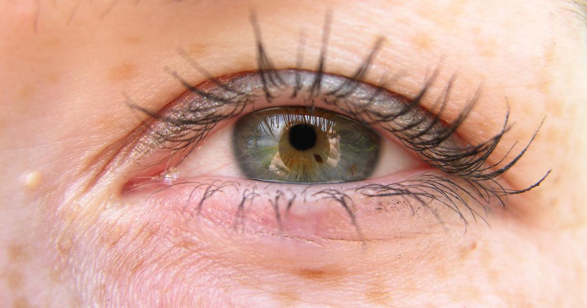 vörös foltok lehúzódnak a szem alatt)