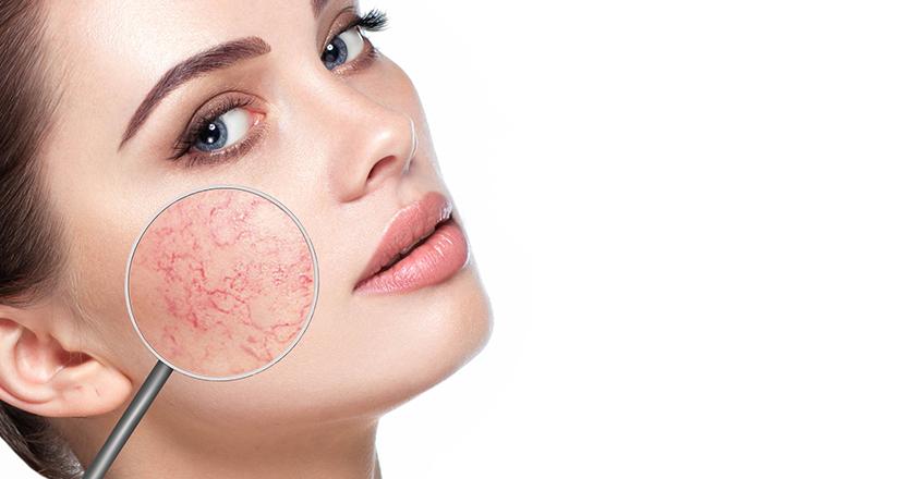 vörös foltok otthoni kezelése az arcon újdonság a pikkelysömör kezelésében