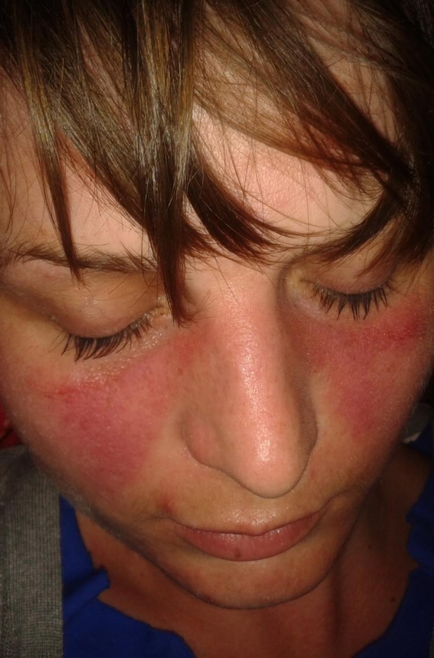 vörös foltok és duzzanat jelentek meg az arcon)