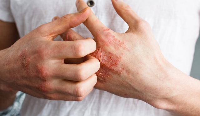 pikkelysömör kezelése Japánban