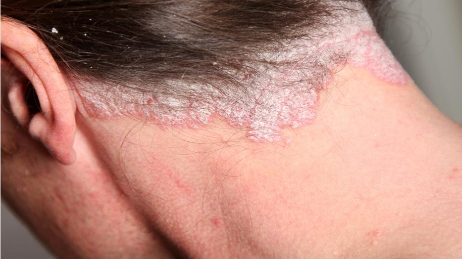 hogyan lehet gyógyítani a fej és a test pikkelysömörét