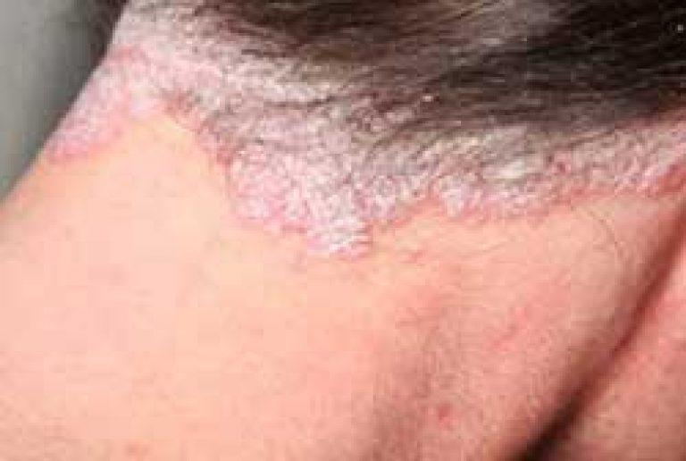 stacionárius pikkelysömör kezelés vélemények az állon vörös foltok viszketés kezelés fotó
