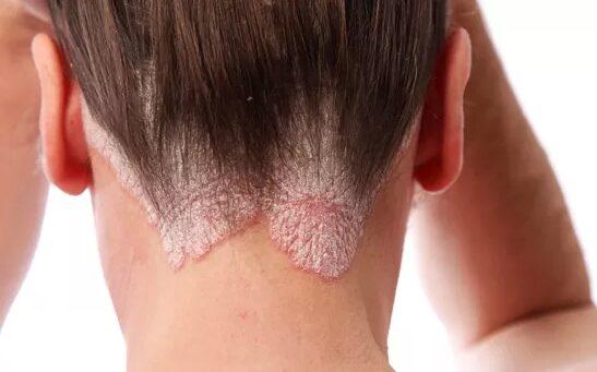 vörös foltok és hámlás a tenyéren pikkelysömör kezelése thaiföldön