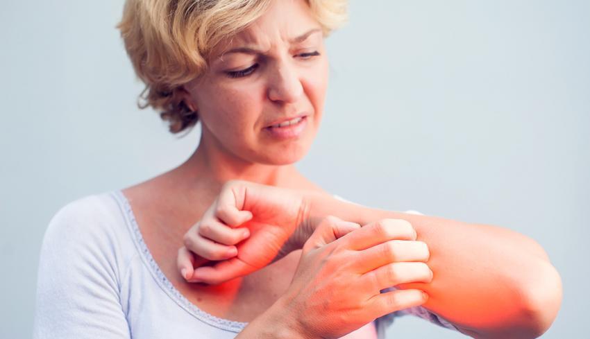 hogyan lehet gyógyítani a pikkelysömör vagy zuzmó vörös viszkető foltok a testen és láz