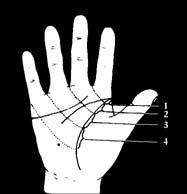 piros foltok a hüvelykujj jobb oldalán)