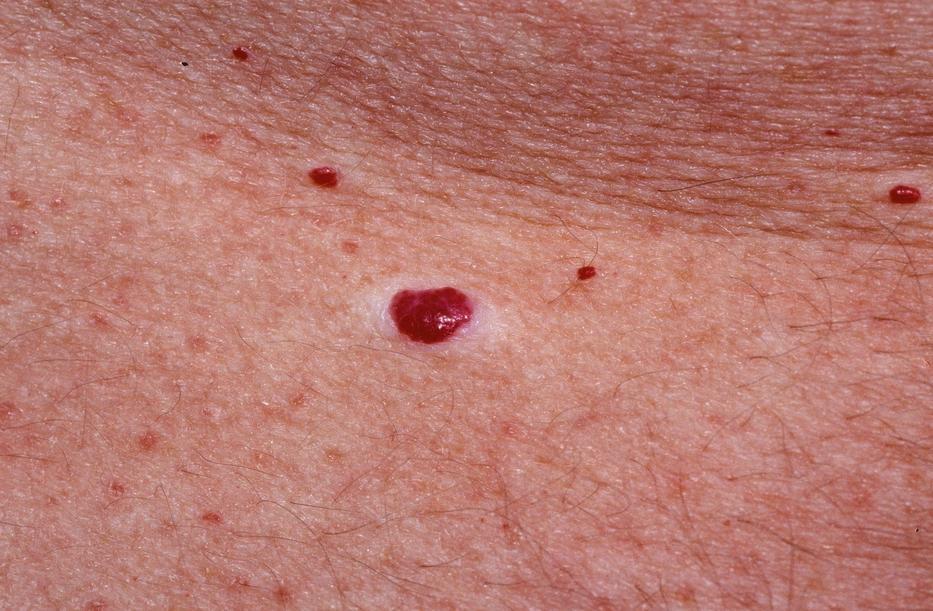 a bőrön vörös durva folt mi ez lead psoriasis kezelése