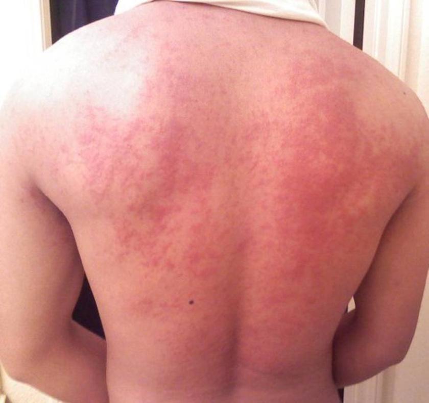 a testet vörös foltok borítják, és viszket a kezelés módja