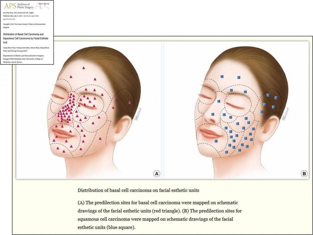 halványvörös foltok az arcon pikkelysömör kezelése s okai
