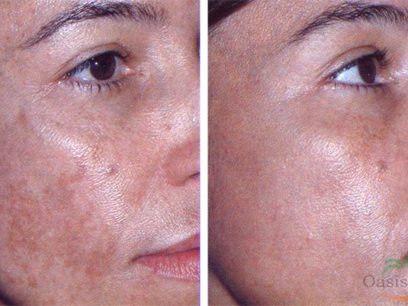 pigmentált vörös foltok az arcfotón