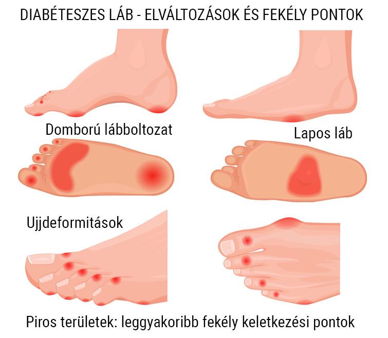 Foltok a lábakon és barna cukorbetegség a bőrön