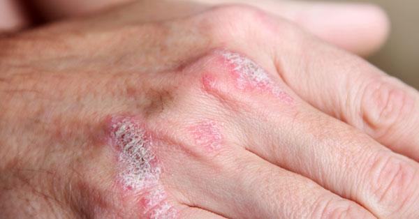 a bőr kiszárad és vörös foltok borítják