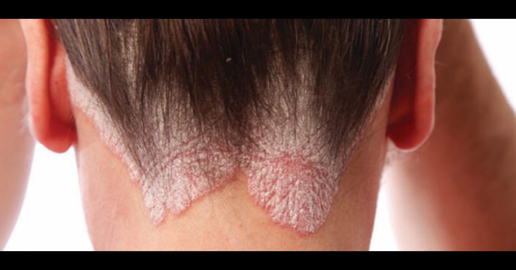 a pikkelysömör kezelésének legjobb módja vörös foltok jelentek meg az arcon és az arc ég